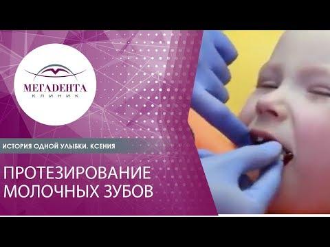 Протезирование молочных зубов. История одной улыбки. Ксения