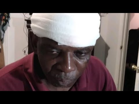 Clarence Gailyard Tried To Comply and Still St0mped On The Head By Officer
