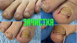 Ногти после Химиотерапии ГРИБОК Онихолизиз Скручивание Как восстановить