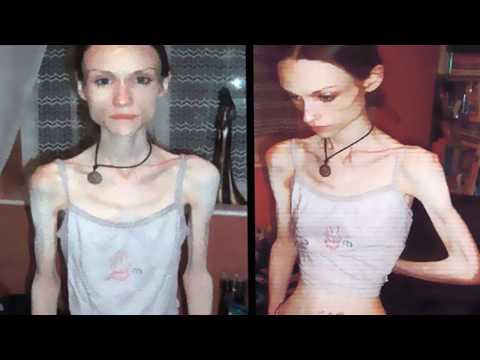 Most Shocking Anorexic Transformation from YouTube · Duration:  3 minutes 37 seconds