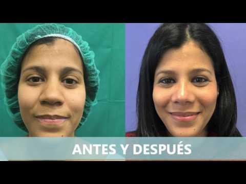 Antes Y Después De Una Rinoplastia Fc Estética Youtube