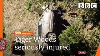 <b>Tiger Woods</b> undergoes surgery after car crash @BBC News live ...