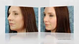 Roberts Cosmetic Surgery Rhinoplasty information Thumbnail