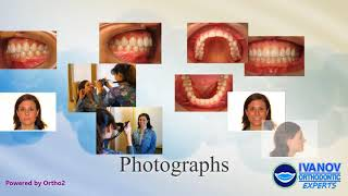 Proper Orthodontic Records for Accurate Braces Planning