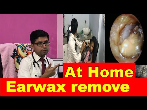 HOW TO REMOVE EARWAX AT HOME IN CHILDREN WITHOUT PAIN { HINDI}  || OTOSCOPE FOR DOCTORS