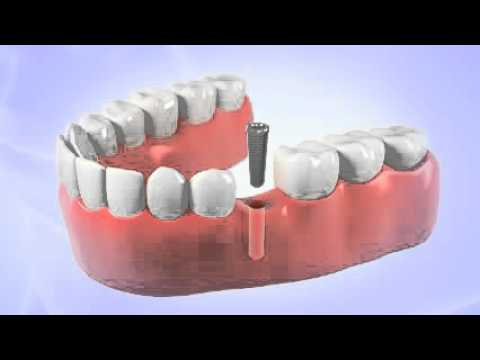 Dr. Cavallari, Periodontist in Chesapeake, VA, Shares Video About Dental Implants