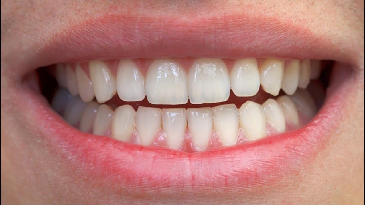 02d81b896e21 Como é Antes e Depois da Prótese Dentária Imediata Parcial de ...