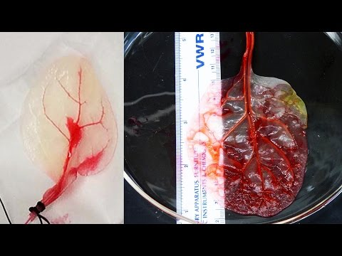 Scientists Turn SPINACH LEAVES Into Working Human Heart Tissue