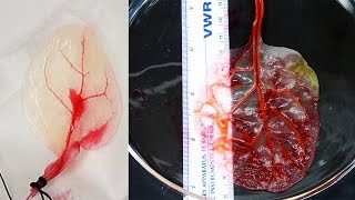 Scientists Turn SPINACH LEAVES Into BEATING Human Heart