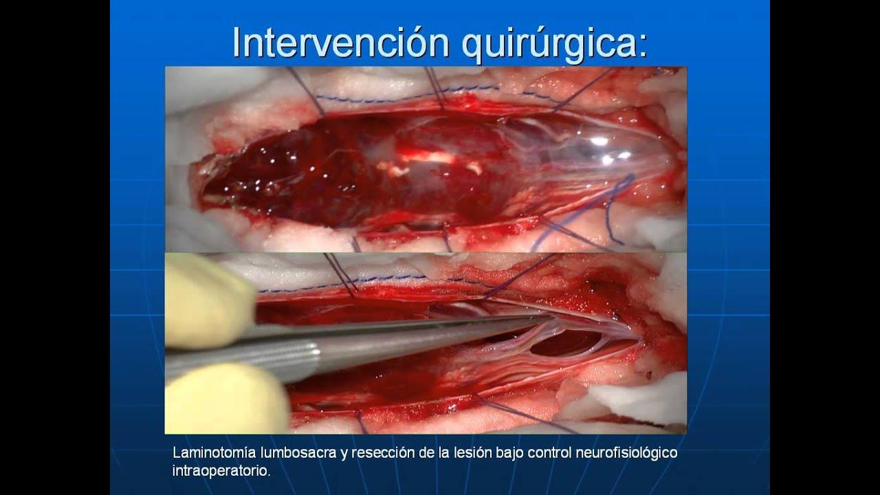neurocirugiaprincesanet ependimoma de cola de caballo