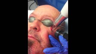 Teardrop Tattoo Removal - A Life-Changing Procedure!