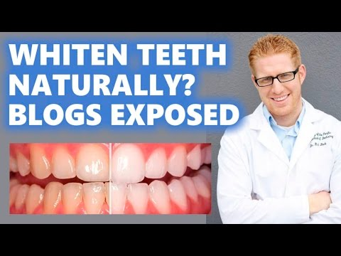 How To Remove Cavity From Teeth At Home Naturally