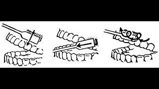 Как чистить зубы: картинки не для детей