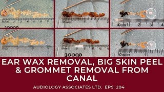 EAR WAX REMOVAL, BIG SKIN PEEL & GROMMET REMOVAL FROM CANAL - EP 204