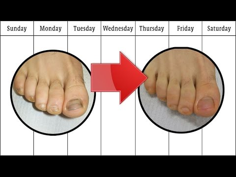 How To Get Rid Of Bad Toenail Fungus Review 4