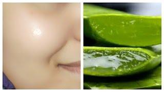 How Get Clear Glowin Less Skin Using Aloe Vera Gel