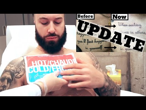 DON'T GET LASER TATTOO REMOVAL UNTIL YOU WATCH THIS!! Update & Tips   PICOSURE