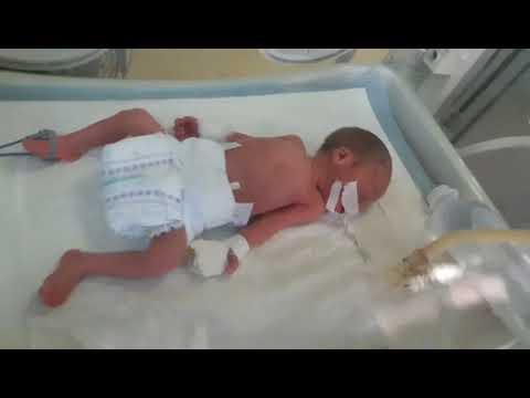 Мой пятый малыш.Родился на 29 недели,боролся за жизнь 50дней