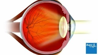 How LASIK eye surgery is carried out