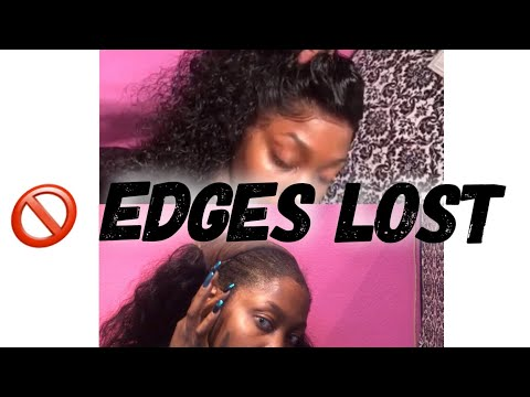 How to Easily Remove And Clean Lace Frontal | 🚫 Edges lost