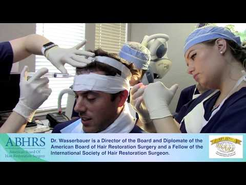 Hair Transplant Cost Factors Explained - California Hair Surgeon