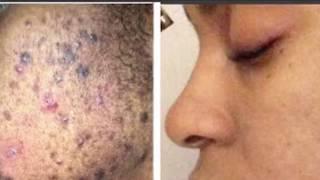 .. Utiliser ces sérums anti tâches intensives si vous avez ce problème sur le visage ...!