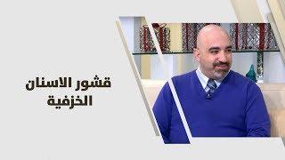 د. خالد عبيدات -  قشور الاسنان الخزفية