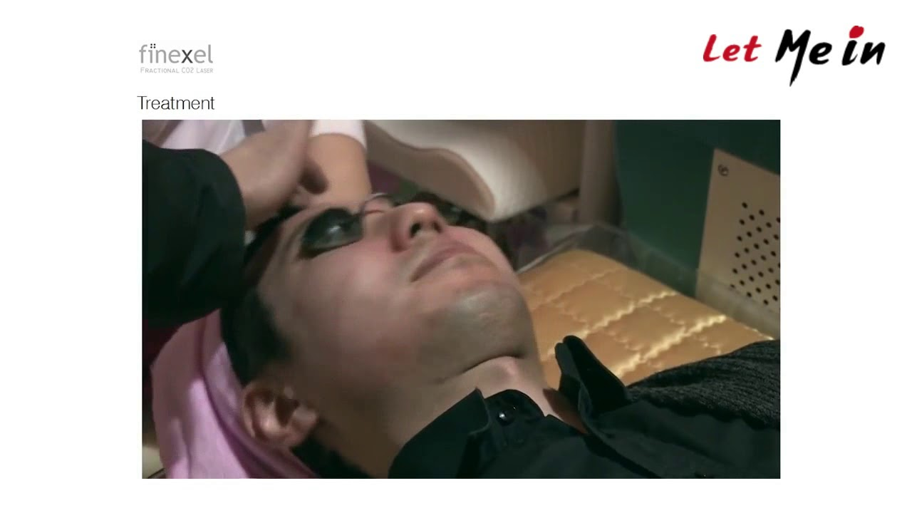 Laser Treatment At Nepal Youtube