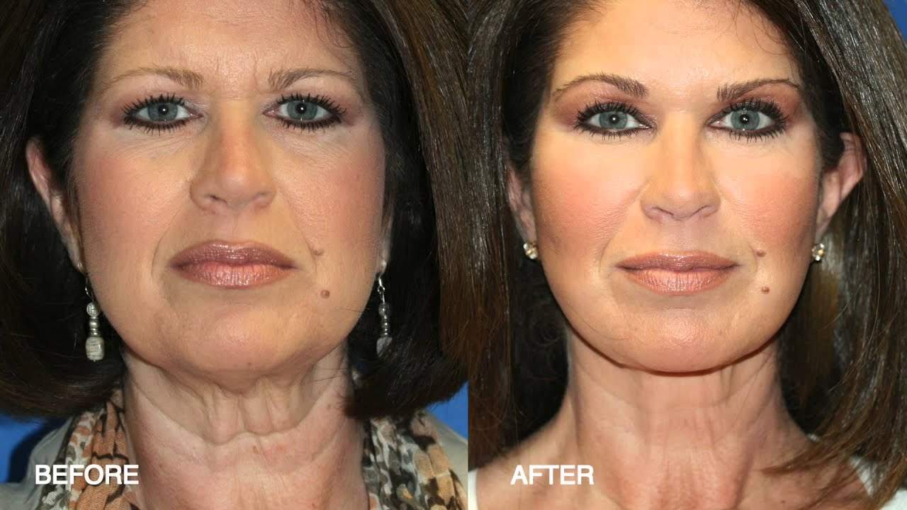 fat transfer / fat grafting / fat injections with facial plastic