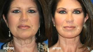 Fat Transfer / Fat Grafting / Fat Injections with Facial Plastic Surgeon Dr Karam