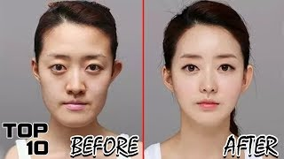 Top 10 INSANE Surgery Transformations