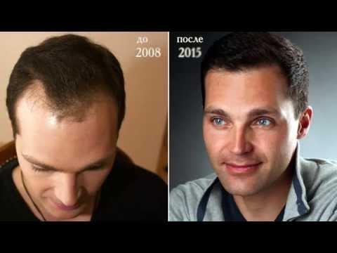 Ароматика масло для укрепления волос отзывы