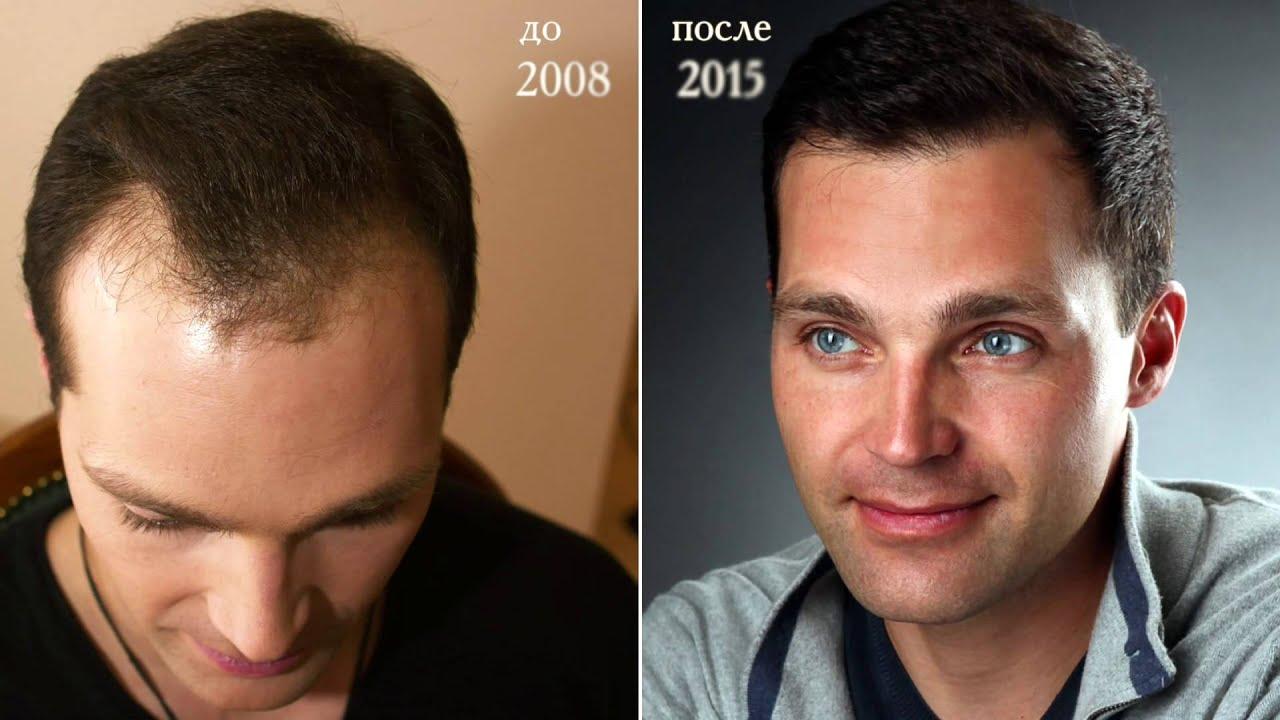 Реал транс хаер цены на пересадку волос