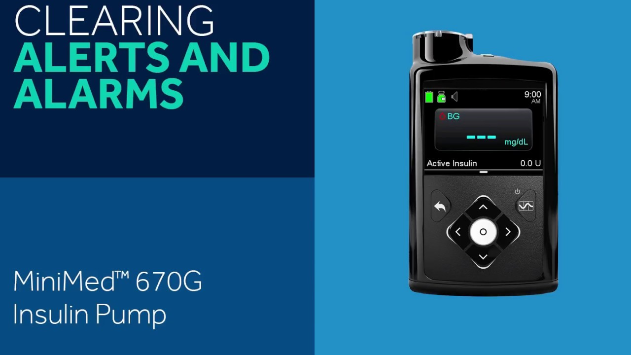 How to Clear Alerts and Alarms on the MiniMed 670G Insulin Pump