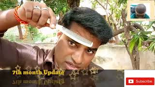 7th month Hair Transplant  review-good  result/Tamil FUE Transplant