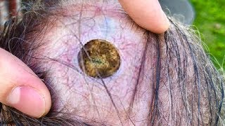 Pimple Poppers Dilated Pore Pop – Tipmyshow