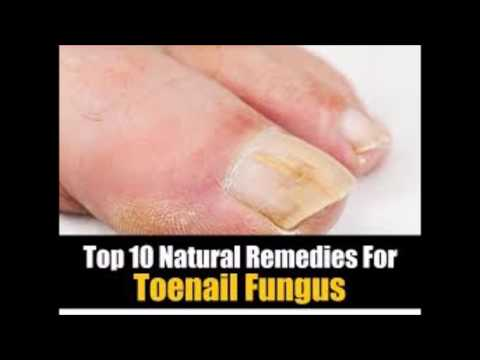 Fungal Nail Infection More Condition Treatment