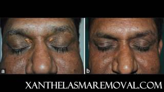Xanthelasma removal at home without scarring, the most time saving and cost effective solution!