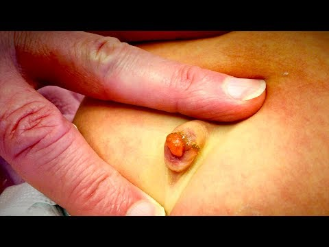 UNUSUAL GROWTH ON INFANT BELLY BUTTON (Umbilical Granuloma) | Dr. Paul