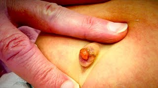 UNUSUAL GROWTH ON INFANT BELLY BUTTON (Umbilical Granuloma)   Dr. Paul