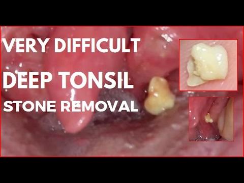 Deep throat remover
