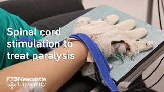 Spinal cord research helps paralysed hand to move again