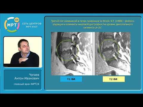 МРТ диагностика дегенеративно-дистрофических заболеваний позвоночника