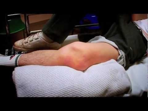 Dislocated Kneecap - Bizarre ER