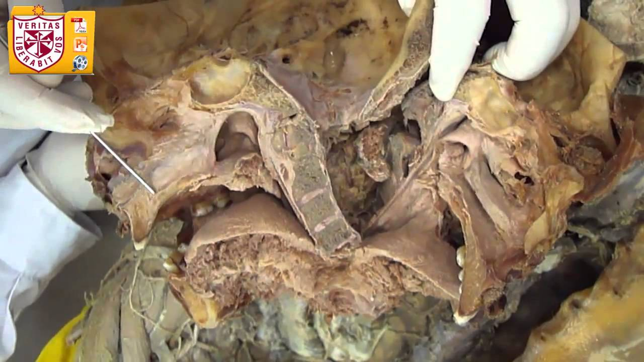 Anatomía [Lab] - Fosa Nasal y Orbitaria - YouTube