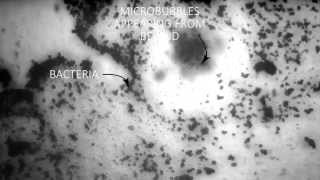 Removal of a biofilm by ultrasound microbubbles