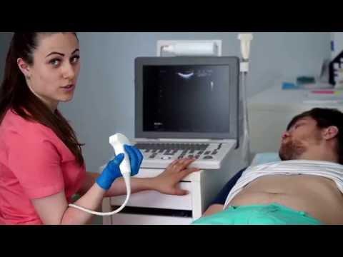 УЗИ брюшной полости в Клинике Сатори в Самаре