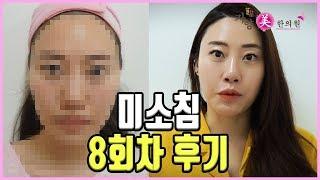 미소침(미용침)후기 인터뷰 ~~~ 자향미한의원