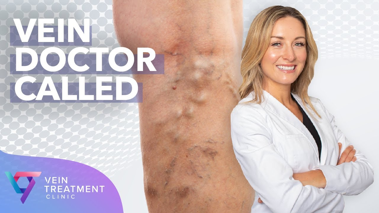 Medical Center: Vein Doctor Called | Spider and Varicose Vein Treatment Center