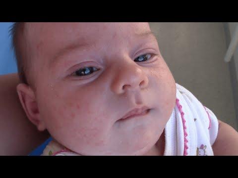 Неонатальный пустулез (Цветение новорожденных, гормональная сыпь или акне новорожденных)